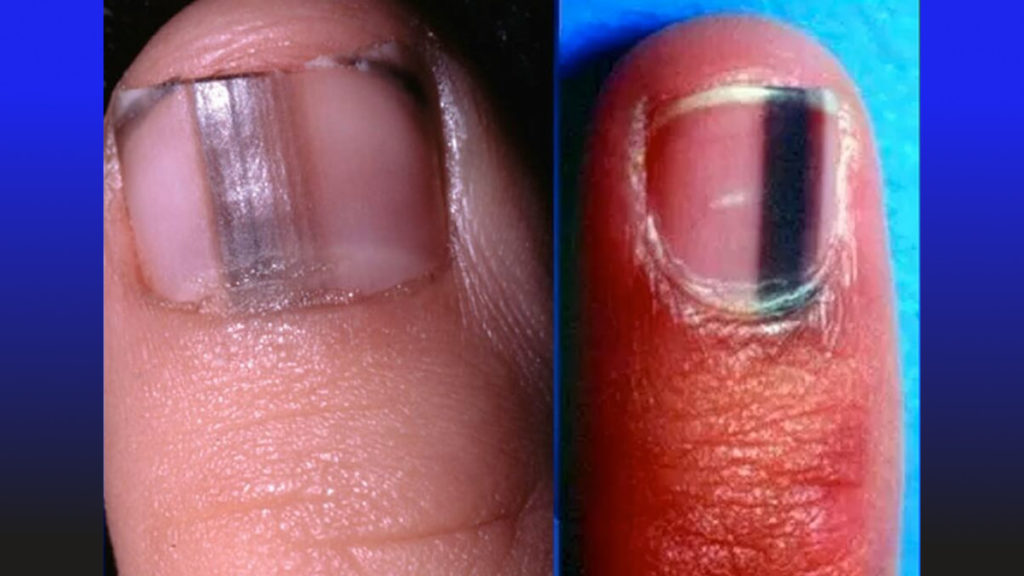 dark stripes on nail indicate melanoma cancer