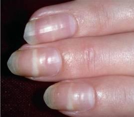 Blue Band at the Base of the Nail -   Life-saving warnings your nails are sending