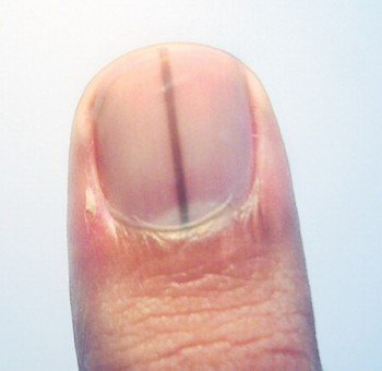 Dark Bands Running Vertically Through Your Nail -   Life-saving warnings your nails are sending