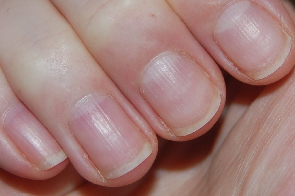 Life-saving warnings your nails are sending | How Do It Info