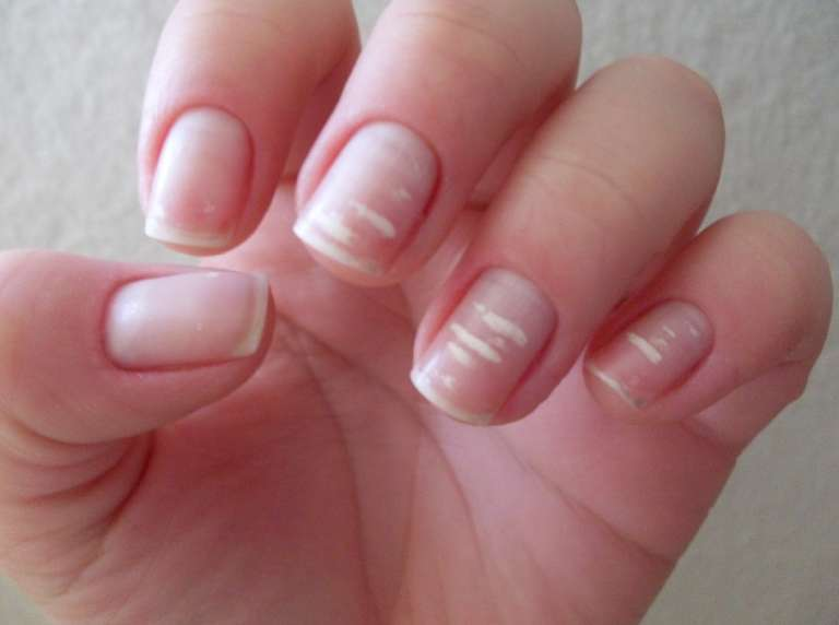 Life-saving warnings your nails are sending
