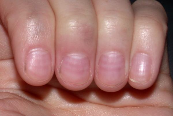 White Lines Across Nails or Muehrcke's lines