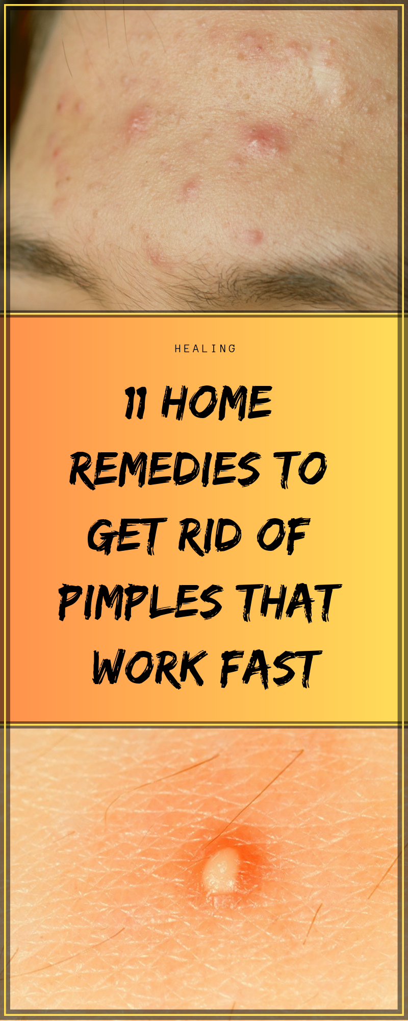 11 Home Remedies To Get Rid Of Pimples That Work Fast -   18 makeup Beauty remedies ideas