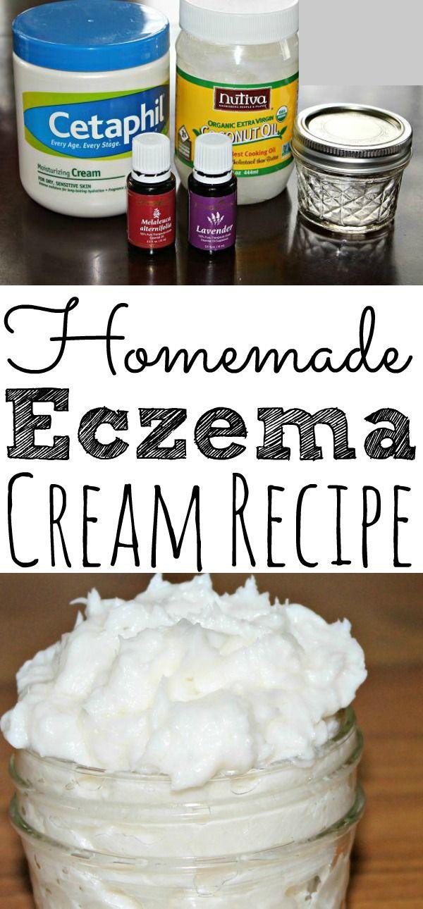 Homemade Eczema Cream With Essential OIls -   16 hair Natural homemade recipe ideas