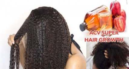 68+ Best ideas hair growth treatment for black women skin care -   11 skin care For Black Women style ideas